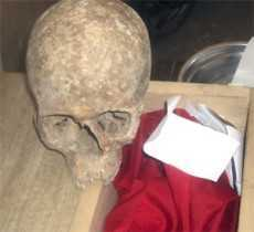Photo: Man Allegedly used his son for 'Sakawa' Money Rituals 'Rots' alive