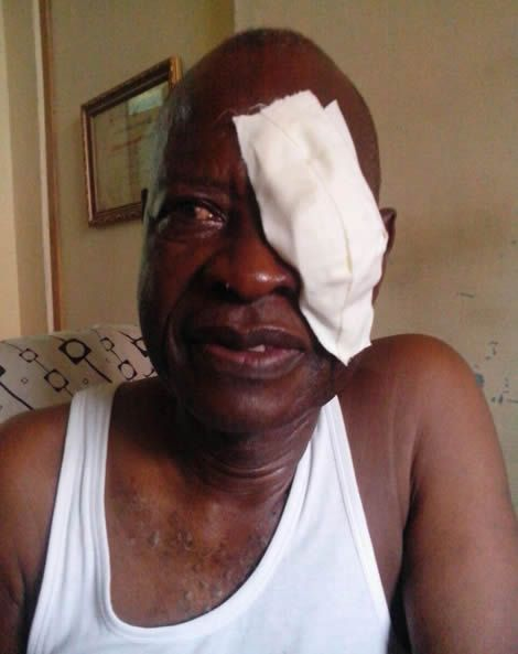 Actor William Addo Undergoes Successful Eye Surgery (Photo)
